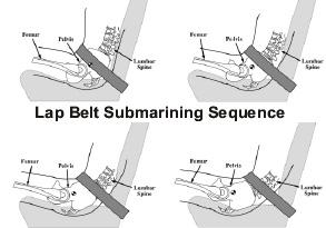 lap-belt